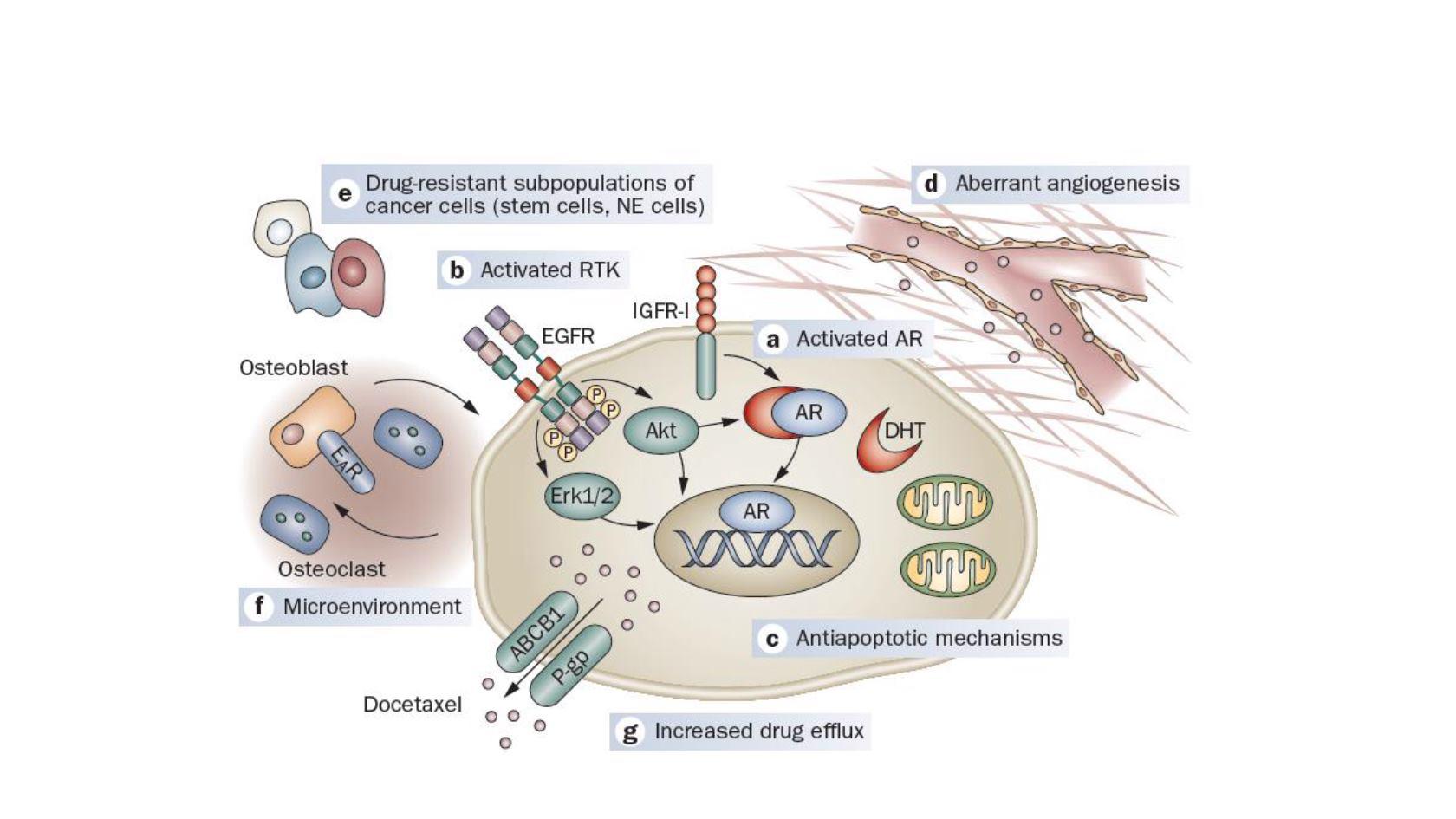 diapositiva de cáncer de próstata